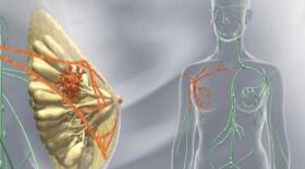 В России появился первый иммуноонкологический препарат для лечения одного из наиболее агрессивных типов рака молочной железы