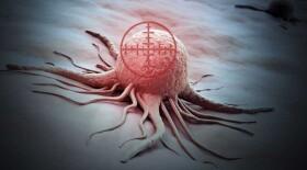 Утверждена стратегия по борьбе с онкозаболеваниями до 2030 года