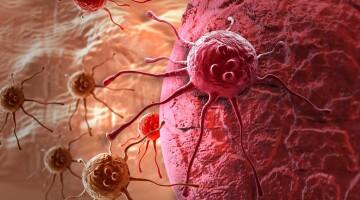 Место комбинированной терапии в лечении метастатического почечно-клеточного рака