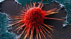 Минздрав назвал регионы с самой высокой заболеваемостью раком