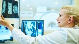 Московские врачи получат за раннюю диагностику рака 42,6 млн рублей