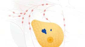 Нейросеть DeepMind от Google научилась точнее врачей диагностировать рак молочной железы