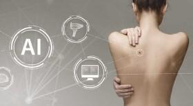 Новый подход в цифровой диагностике рака кожи на ранних этапах позволит снизить потребность в биопсии