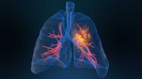 Лечение пациентов с распространенным немелкоклеточным раком легкого. Что считать стандартом терапии?