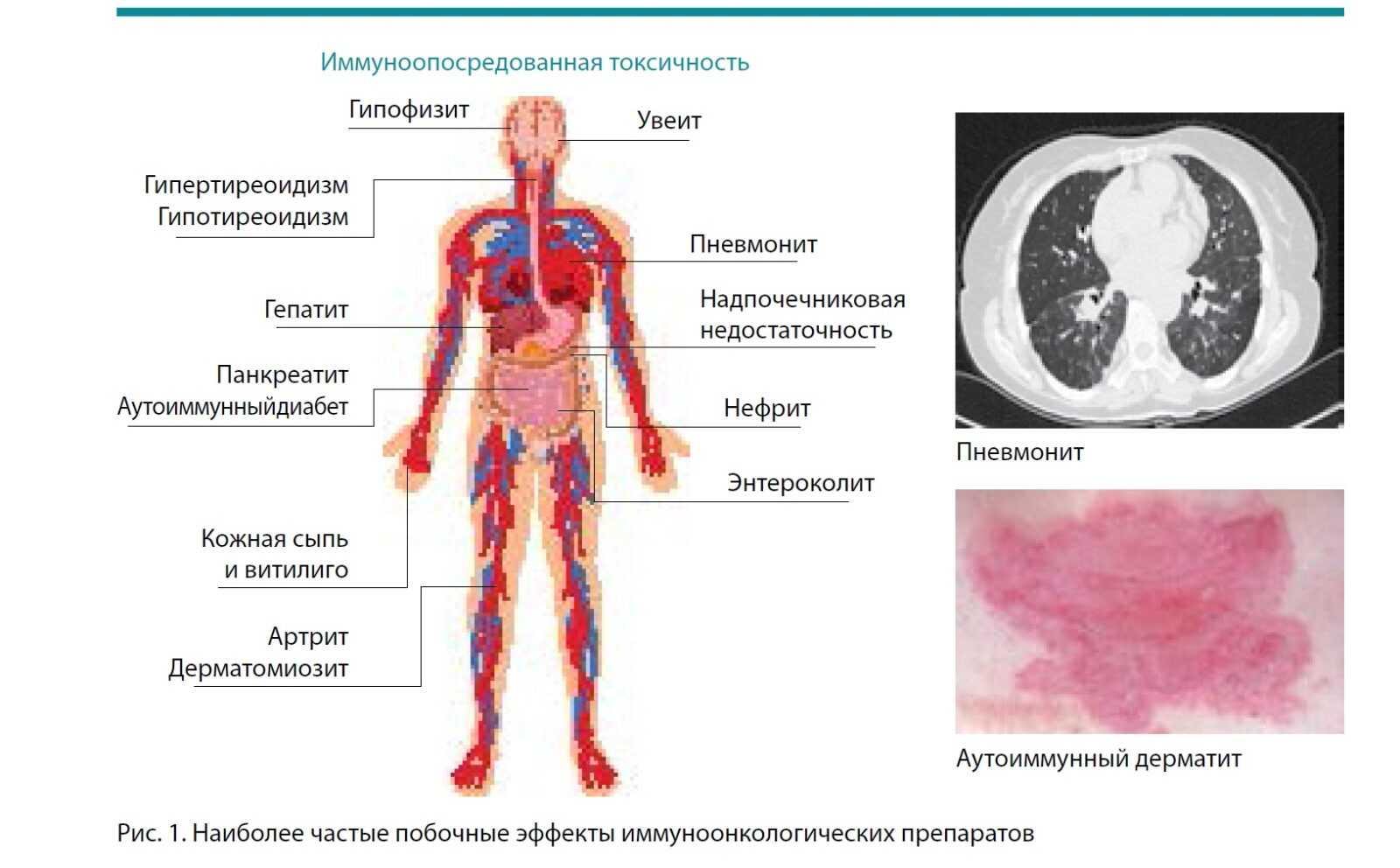 Наиболее частые побочные эффектны иммуноонкологических препаратов