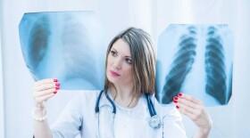 Чаще других из-за условий труда раком заболевают работники обрабатывающих производств