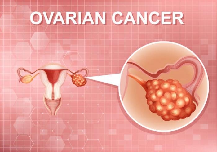 Рак яичников: механизм адаптации в условиях гипоксии