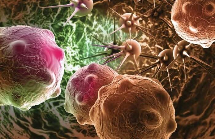 Иммунотерапия меланомы – как достичь наилучших результатов