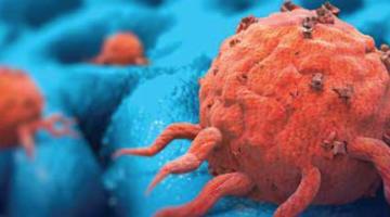 Применение пембролизумаба в терапии опухолей различных локализаций