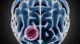 Одобрено новое средство против нейробластомы