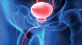 Раннее назначение гормональной терапии распространенного рака предстательной железы