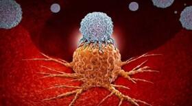 Немецкий онколог назвал самый эффективный метод борьбы с раком