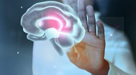 Нейросеть научилась находить опухоли на 3D-снимках головного мозга