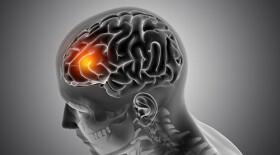 Дексаметазон может снижать эффективность ингибиторов иммунных контрольных точек против глиобластомы