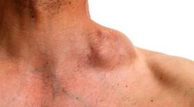 CAR Т-клеточная терапия эффективна у пациентов с неходжкинской лимфомой
