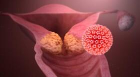 Вирус папилломы человека: нужны вакцинация и скрининг для профилактики рака шейки матки