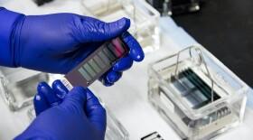 Ученые открыли новый способ лечения рака поджелудочной железы с помощью вирусов