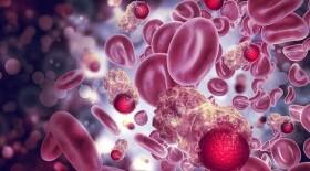 Круглый стол, посвященный проблемам онкогематологических пациентов: существующие нормативы и алгоритмы лечения не отвечают ожиданиям и потребностям больных