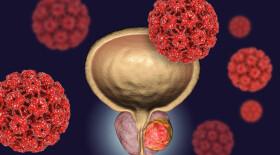 Достигнута одна из комбинированных конечных точек исследования эффективности IPATential150  у мужчин с кастрационно-резистентным раком предстательной железы