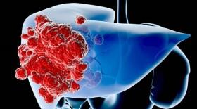 В России появилась инновационная технология лечения рака печени